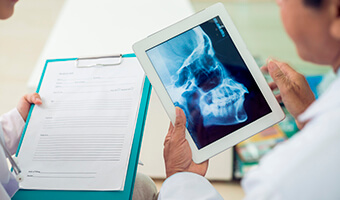dentist checking x-ray on tablet