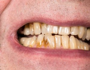 man with receding gums decay