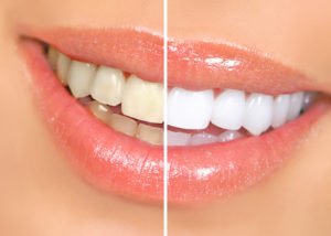 before after photo teeth whitening